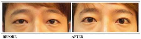 雙眼皮手術2.jpg