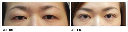 雙眼皮手術3.jpg