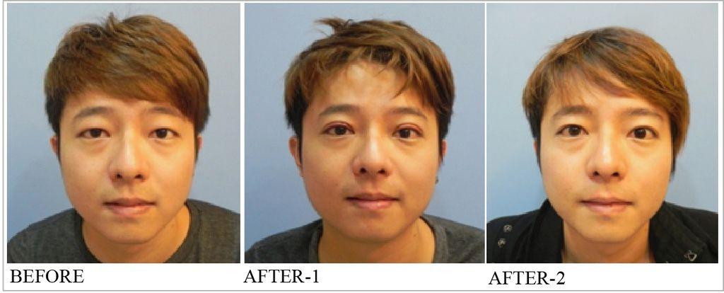 割雙眼皮手術.jpg