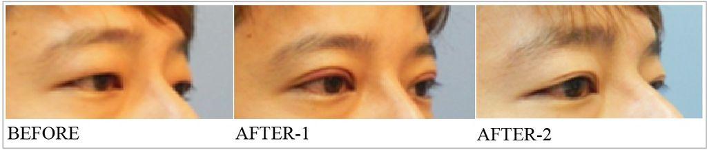 割雙眼皮手術1.jpg