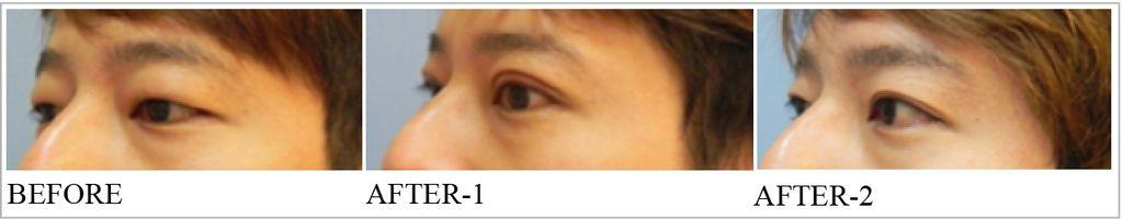割雙眼皮手術2.jpg