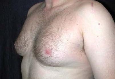 男性女乳症.jpg