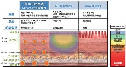 超音波拉提1.jpg