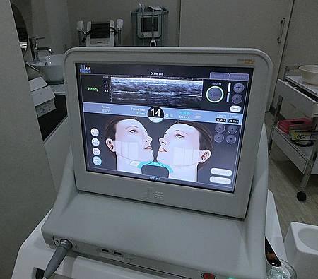 Ulthera超音波拉提體驗 - 追求臉的極致線條~緊實拉提讓臉更上鏡!!10.jpg