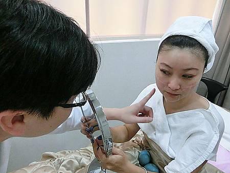 Ulthera超音波拉提體驗 - 追求臉的極致線條~緊實拉提讓臉更上鏡!!18.jpg