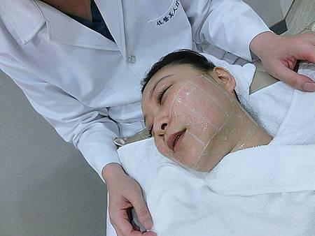 Ulthera超音波拉提體驗 - 追求臉的極致線條~緊實拉提讓臉更上鏡!!22.jpg