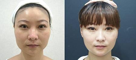 Ulthera超音波拉提體驗 - 追求臉的極致線條~緊實拉提讓臉更上鏡!!27.jpg