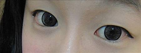 佳醫美人。告別單眼皮...訂書針書眼皮手術實錄!2.jpg