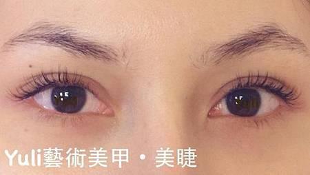 佳醫美人。告別單眼皮...訂書針書眼皮手術實錄!11.jpg