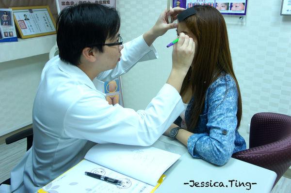 佳醫美人。告別單眼皮...訂書針書眼皮手術實錄!14.jpg