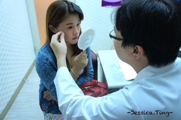 佳醫美人。告別單眼皮...訂書針書眼皮手術實錄!15.jpg