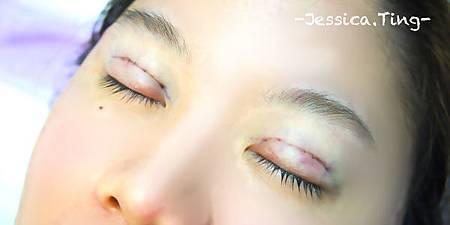 佳醫美人。告別單眼皮...訂書針書眼皮手術實錄!22.jpg