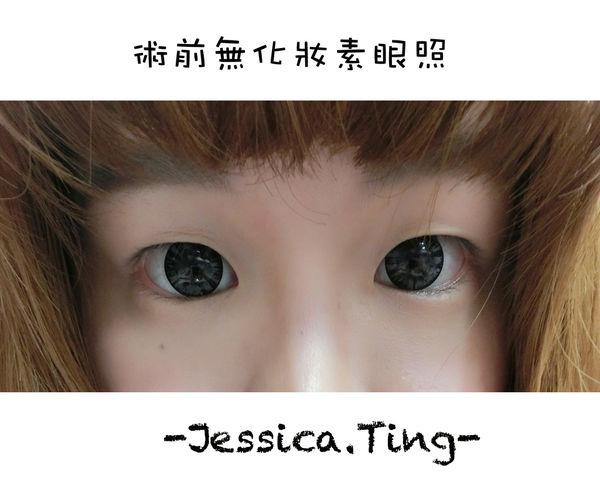 佳醫美人。告別單眼皮...訂書針書眼皮手術實錄!25.jpg