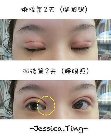 佳醫美人。告別單眼皮...訂書針書眼皮手術實錄!26.jpg