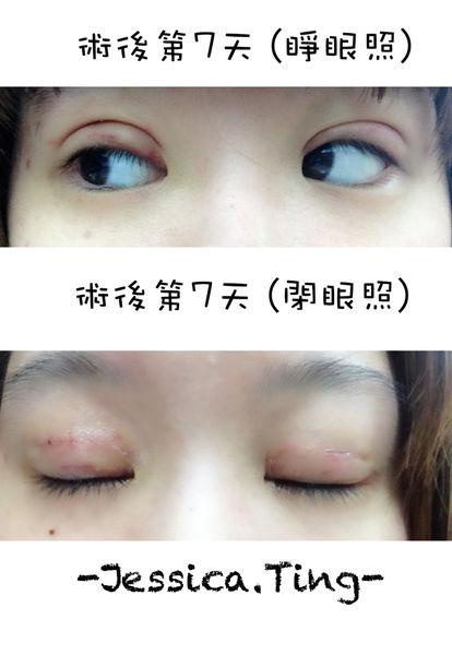 佳醫美人。告別單眼皮...訂書針書眼皮手術實錄!28.jpg