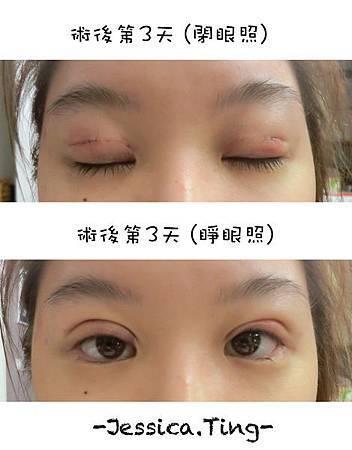 佳醫美人。告別單眼皮...訂書針書眼皮手術實錄!27.jpg