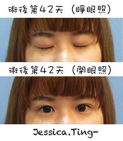佳醫美人。告別單眼皮...訂書針書眼皮手術實錄!36.jpg