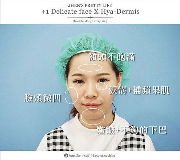 玻尿酸體驗 - 量身訂製更上相的精緻臉♥微調全臉的水微晶+肉毒除皺 #下巴額頭好重要25.jpg