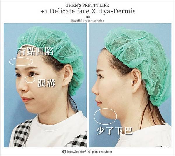 玻尿酸體驗 - 量身訂製更上相的精緻臉♥微調全臉的水微晶+肉毒除皺 #下巴額頭好重要26.jpg