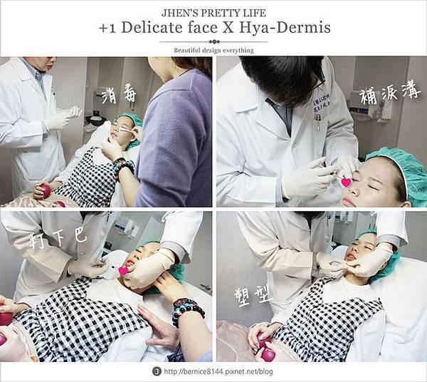 玻尿酸體驗 - 量身訂製更上相的精緻臉♥微調全臉的水微晶+肉毒除皺 #下巴額頭好重要35.jpg