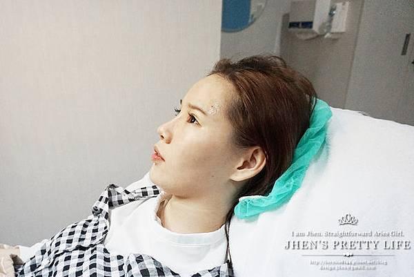 玻尿酸體驗 - 量身訂製更上相的精緻臉♥微調全臉的水微晶+肉毒除皺 #下巴額頭好重要38.jpg