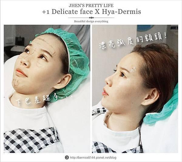 玻尿酸體驗 - 量身訂製更上相的精緻臉♥微調全臉的水微晶+肉毒除皺 #下巴額頭好重要39.jpg