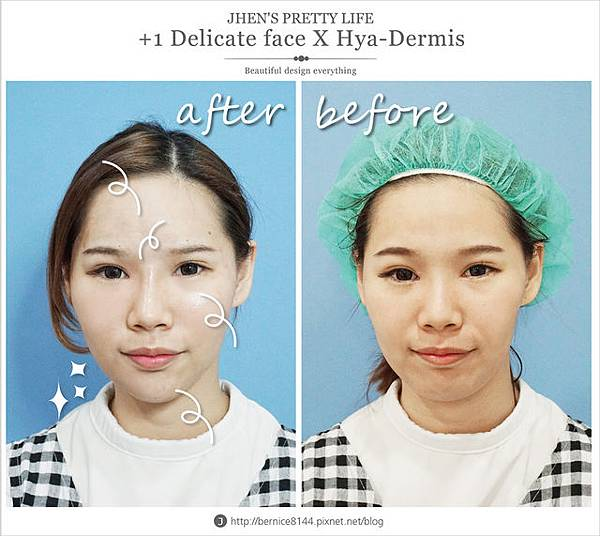 玻尿酸體驗 - 量身訂製更上相的精緻臉♥微調全臉的水微晶+肉毒除皺 #下巴額頭好重要41.jpg