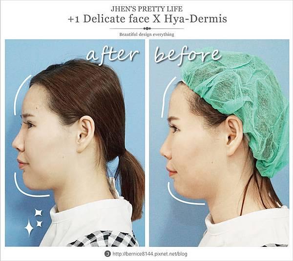 玻尿酸體驗 - 量身訂製更上相的精緻臉♥微調全臉的水微晶+肉毒除皺 #下巴額頭好重要42.jpg