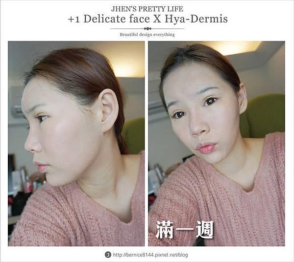玻尿酸體驗 - 量身訂製更上相的精緻臉♥微調全臉的水微晶+肉毒除皺 #下巴額頭好重要55.jpg