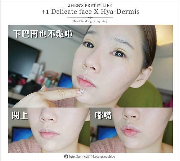 玻尿酸體驗 - 量身訂製更上相的精緻臉♥微調全臉的水微晶+肉毒除皺 #下巴額頭好重要57.jpg