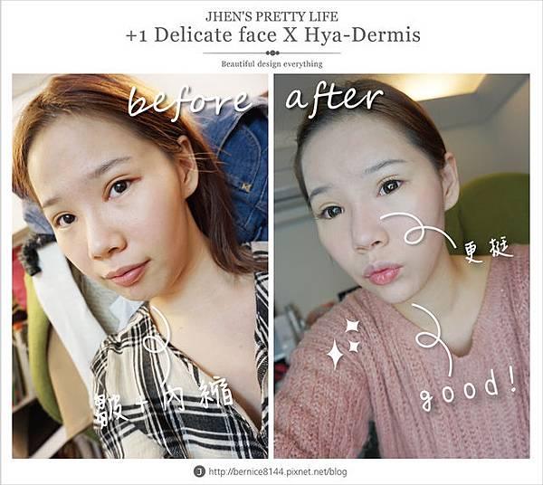 玻尿酸體驗 - 量身訂製更上相的精緻臉♥微調全臉的水微晶+肉毒除皺 #下巴額頭好重要69.jpg
