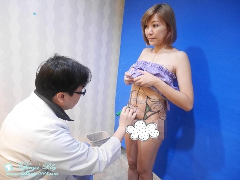 VASER威塑抽脂體驗 - 『醫美‧腹部』威塑抽脂3個月成果!!6.jpg
