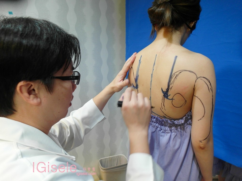 威塑超音波抽脂 - 悄悄的做了威塑瘦手臂跟背 術後五個月心得分享6.jpg