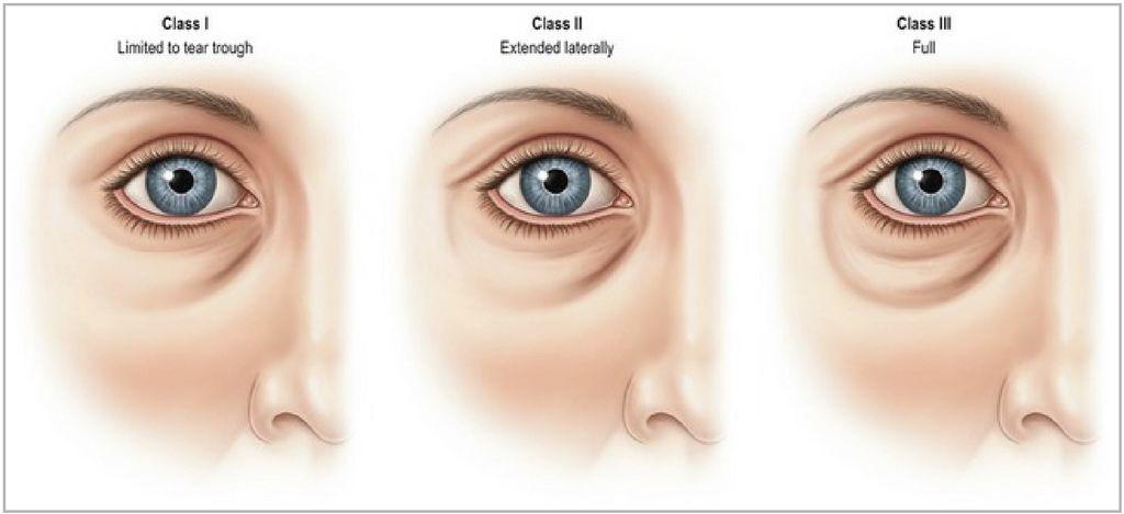 淚溝眼袋問題圖片1.jpg