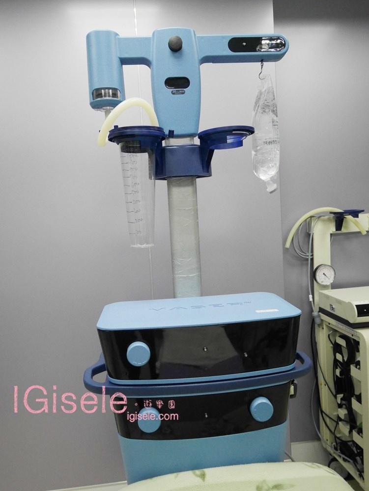 威塑超音波抽脂分享 - 悄悄的做了威塑VASER腹部環抽。術後心得分享9.jpg