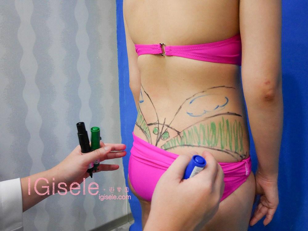 威塑超音波抽脂分享 - 悄悄的做了威塑VASER腹部環抽。術後心得分享8.jpg