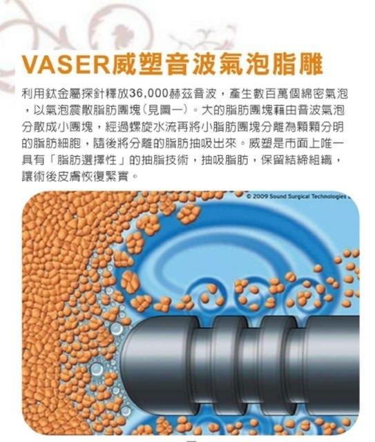 威塑超音波抽脂分享 - 悄悄的做了威塑VASER腹部環抽。術後心得分享12.jpg
