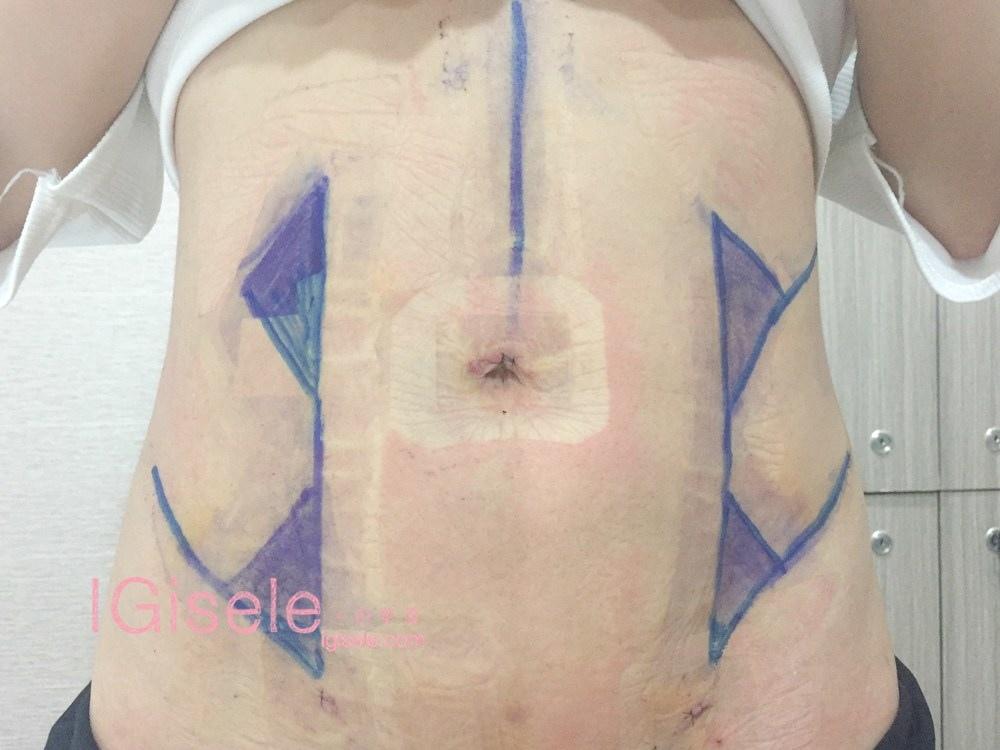 威塑超音波抽脂分享 - 悄悄的做了威塑VASER腹部環抽。術後心得分享14.jpg