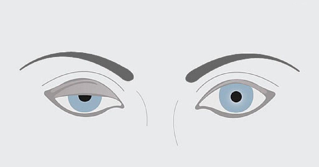 提眼瞼肌無力-01.jpg