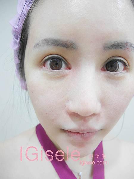 做了電波拉皮+音波拉皮 全臉跟眼週.眼皮鬆弛、法令紋下垂、雙下巴的人可以看這篇心得3.jpg