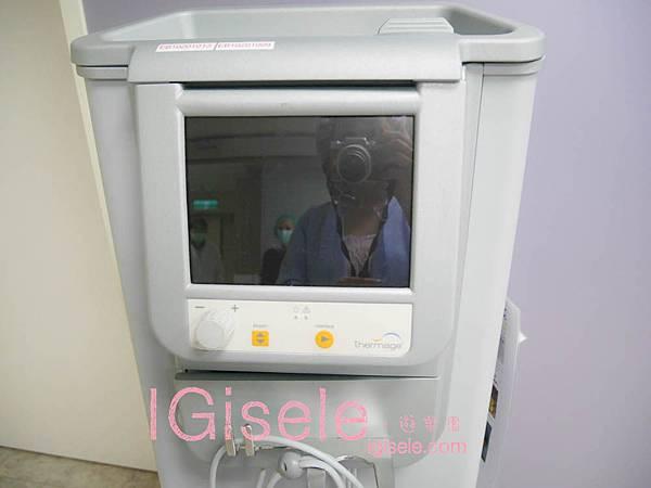 做了電波拉皮+音波拉皮 全臉跟眼週.眼皮鬆弛、法令紋下垂、雙下巴的人可以看這篇心得4.jpg