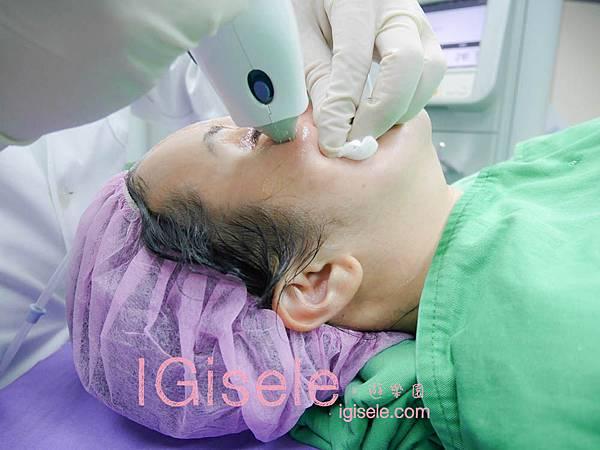 做了電波拉皮+音波拉皮 全臉跟眼週.眼皮鬆弛、法令紋下垂、雙下巴的人可以看這篇心得14.jpg