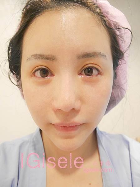 做了電波拉皮+音波拉皮 全臉跟眼週.眼皮鬆弛、法令紋下垂、雙下巴的人可以看這篇心得18.jpg