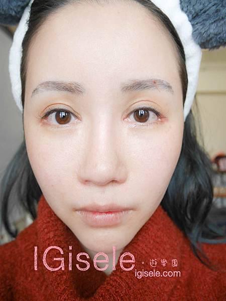 做了電波拉皮+音波拉皮 全臉跟眼週.眼皮鬆弛、法令紋下垂、雙下巴的人可以看這篇心得20.jpg