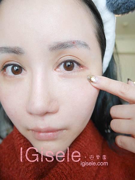 做了電波拉皮+音波拉皮 全臉跟眼週.眼皮鬆弛、法令紋下垂、雙下巴的人可以看這篇心得22.jpg