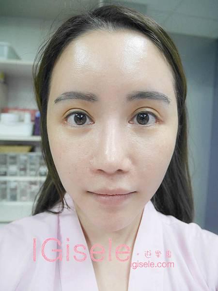做了電波拉皮+音波拉皮 全臉跟眼週.眼皮鬆弛、法令紋下垂、雙下巴的人可以看這篇心得23.jpg