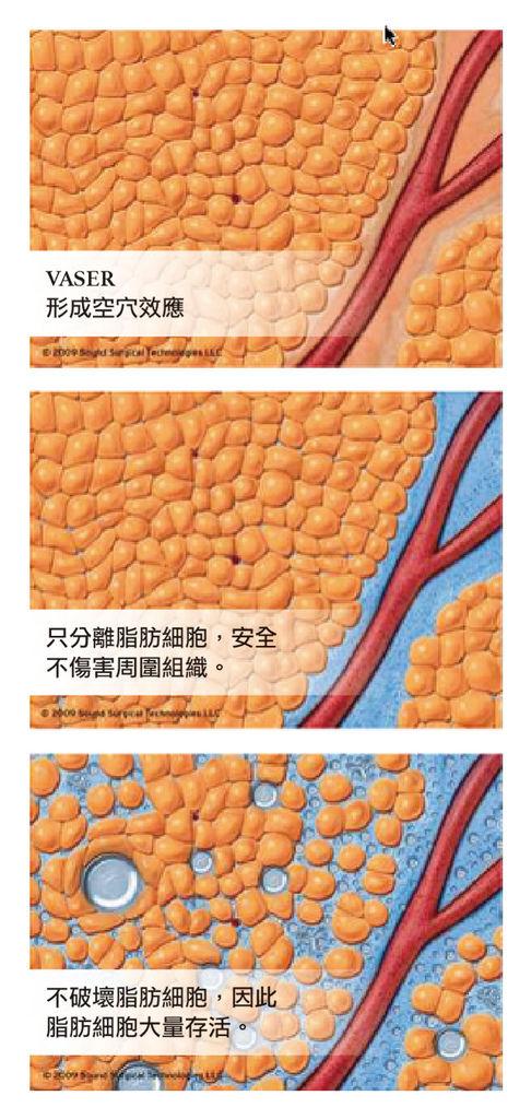 恢復期變短 VASER威塑抽脂連港澳都風靡  - 蘋果日報採訪李兆翔醫師2.jpg
