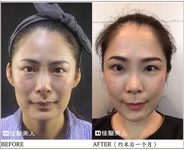 眼袋手术.jpg