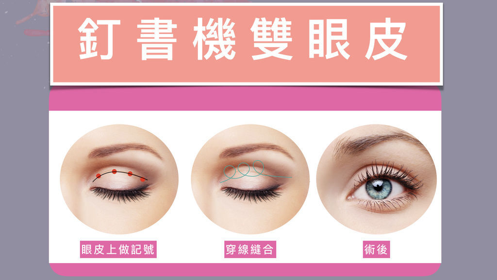 李兆翔醫師 - 亮眼一夏,超夯釘書針雙眼皮,魅力電眼一秒成為照片焦點