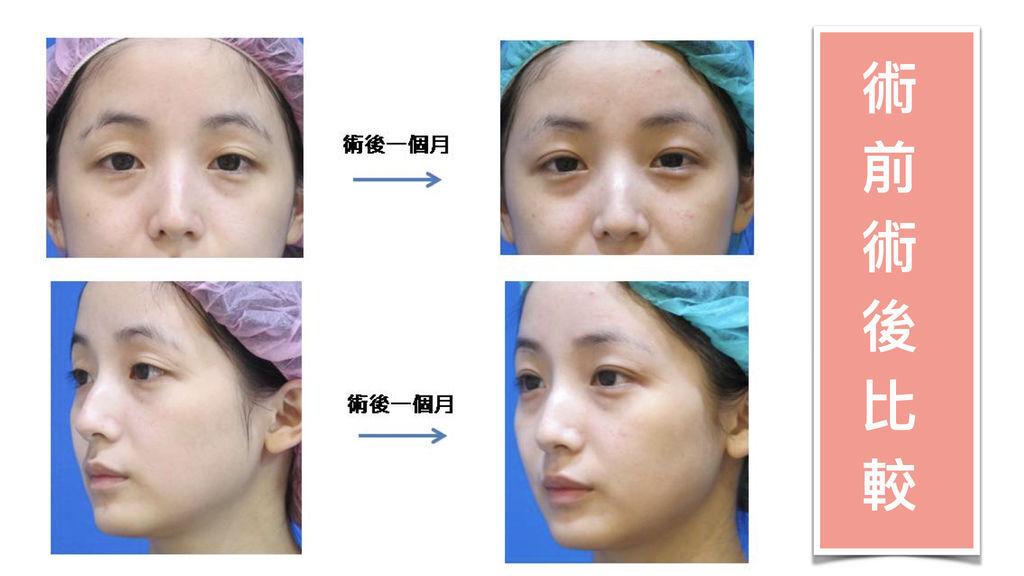 訂書針雙眼皮手術1
